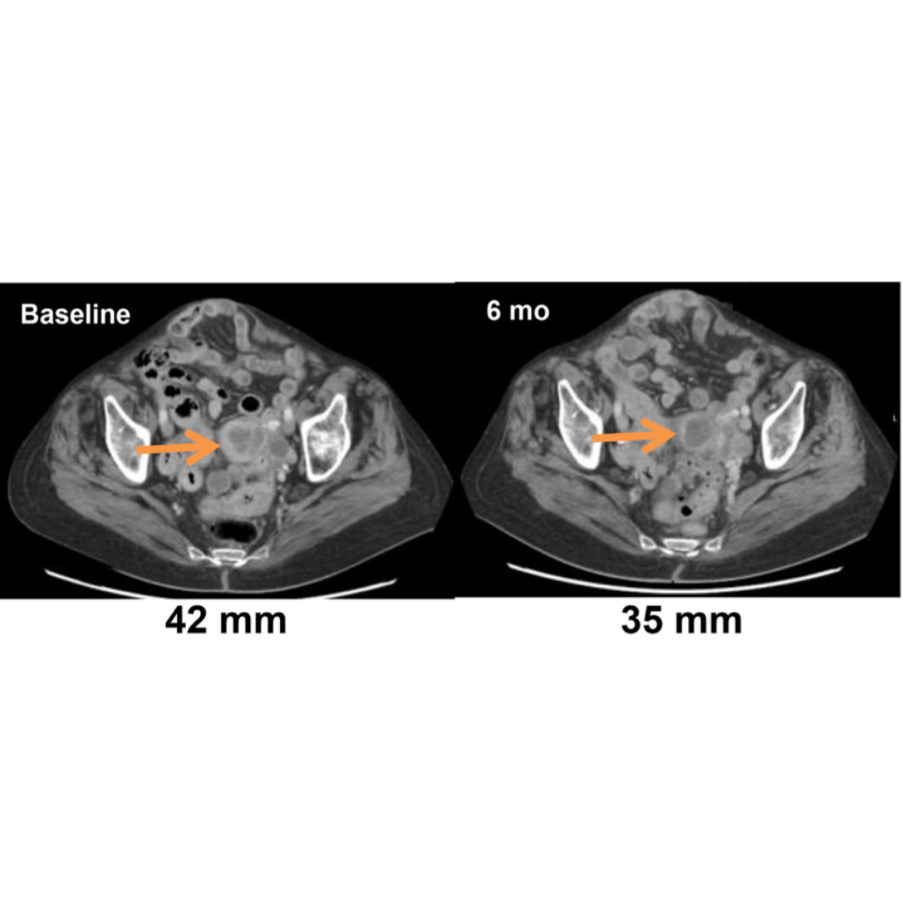 Tumour shrinking with DCT